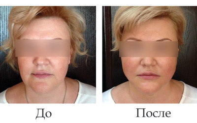 Липосакция и нити Аптос на нижней трети лица