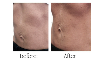 Abdomen reinforcement and light lift - Aptos Threads