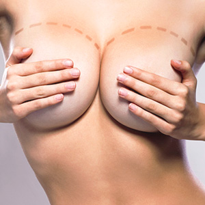 Breast Reduction - Mammoplasty