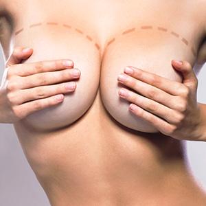 Réduction mammaire - Mammoplastie réductrice