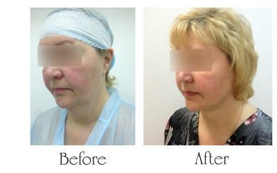 Chin liposuction – Aptos Threads