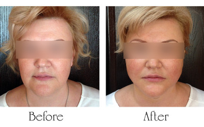 Liposuction and Aptos threads on the lower third of face