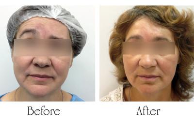 Post traumatic treatment of facial paresis minimally invasive