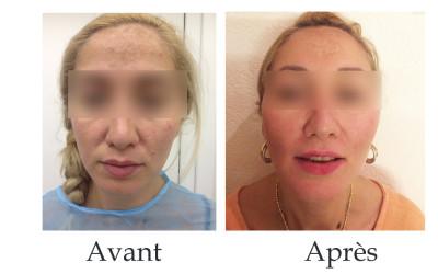 Lifting du contour du visage et des joues - fils tenseurs Aptos