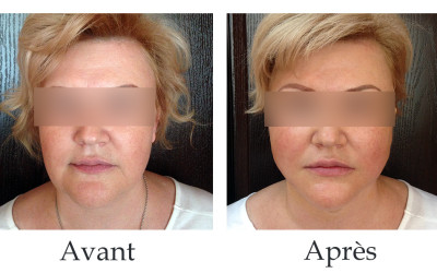 Lipoaspiration et fils tenseurs Aptos au  tiers inférieur du visage