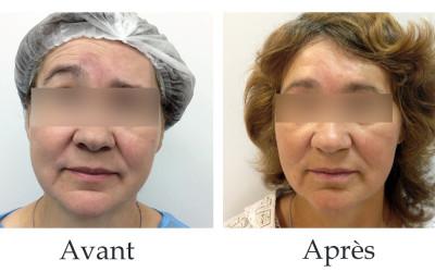 Traitement de l'estafilade post-traumatique du visage par une méthode peu invasive